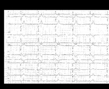Syncope due to complete atrioventricular block with junctional escape rhythm