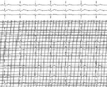 2:1 second-degree atrioventricular block