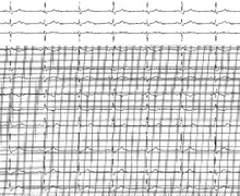 2:1 second-degree atrioventricular block