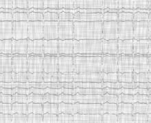Second-degree atrioventricular block type 2
