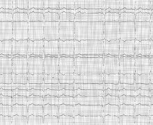 Second-degree atrioventricular block type 2