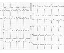 Syncope, bloc de branche gauche et bloc auriculo-ventriculaire du second degré type 1