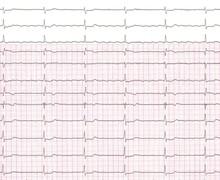 Flutter atrial et trouble de conduction atrio-ventriculaire