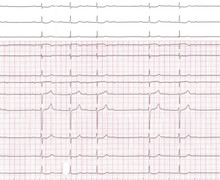 Atrial flutter and atrioventricular conduction disorder