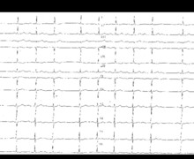 Bloc auriculo-ventriculaire du second degré type Luciani-Wenckebach