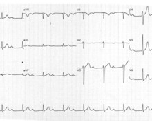 First-degree atrioventricular block and very long PR