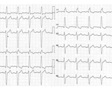 First-degree atrioventricular block and trifascicular block