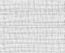 First-degree atrioventricular block