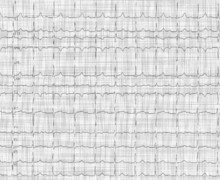 First-degree atrioventricular block