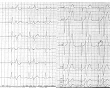 ESV très précoce et risque de fibrillation ventriculaire 2