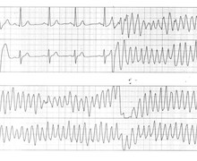 Very early PVC and risk of ventricular fibrillation