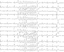 Fibrillation ventriculaire idiopathique