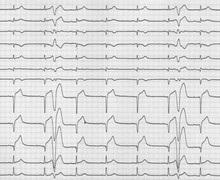 Ischemic ventricular fibrillation