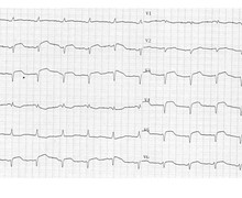 Analysis of the QRS pattern and diagnosis of ventricular tachycardia