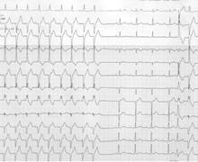 Atrial activity and ventricular tachycardia