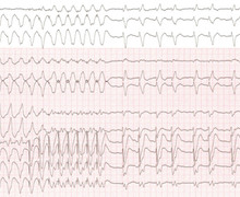 Atrial activity and ventricular tachycardia