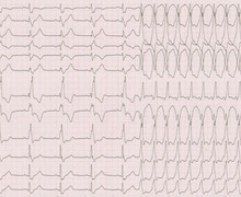 Ventricular tachycardia in a patient with tetralogy of Fallot