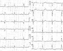 Ventricular tachycardia due to ischemic cardiomyopathy