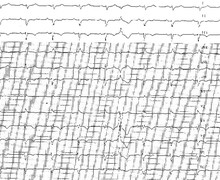 Ventricular tachycardia due to arrhythmogenic right ventricular dysplasia