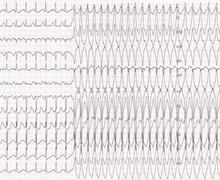 Infundibular ventricular tachycardia