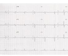 Fascicular ventricular tachycardia