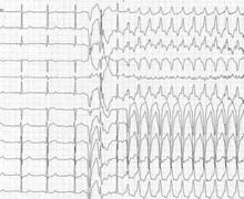 Tachycardie jonctionnelle par réentrée nodale atypique