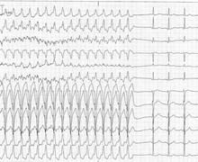 Atypical atrio-ventricular nodal reentrant tachycardia