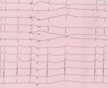 Termination of atrio-ventricular nodal reentrant tachycardia