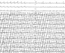 Typical atrio-ventricular nodal reentrant tachycardia