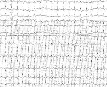 Junctional ectopic tachycardia (JET)