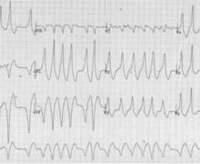 Ebstein's disease, pre-excitation and atrial fibrillation