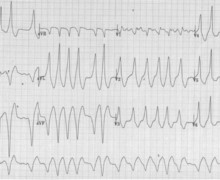 Ebstein's disease, pre-excitation and atrial fibrillation