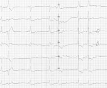 Wolff-Parkinson-White and atrioventricular block