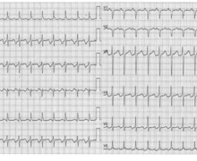 Permanent junctional reciprocating tachycardia (PJRT)