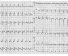 Permanent junctional reciprocating tachycardia (PJRT)