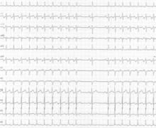 Tachycardie jonctionnelle permanente par rythme réciproque