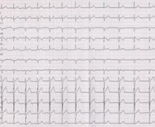 Tachycardie orthodromique sur voie accessoire cachée