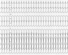 Orthodromic tachycardia due to an accessory pathway (AVRT)