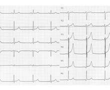 Tachycardie orthodromique sur voie accessoire