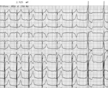 Intermittent pattern of ventricular pre-excitation