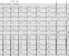 Aspect intermittent de pré-excitation ventriculaire