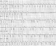 Atrial flutter and post-tachycardia syncope