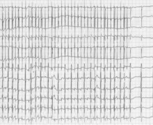 Atrial flutter in a newborn with transposition of great vessels