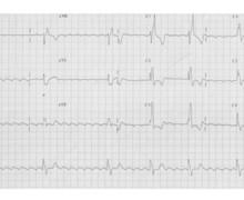 Flutter commun chez un patient avec cardiopathie congénitale