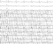 Left atrial enlargement and atrial fibrillation