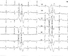 Ventricular couplets and arrhythmogenic right ventricular dysplasia
