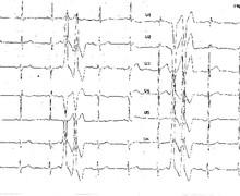 Ventricular couplets and arrhythmogenic right ventricular dysplasia