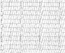 Trigéminisme ventriculaire et ESV bénignes