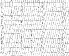 Ventricular trigeminy and benign PVC