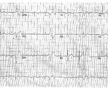 Very premature ventricular complex and risk of ventricular fibrillation
